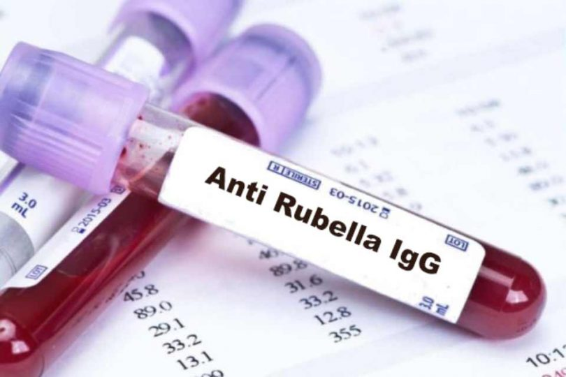 anti rubella IgG, IgM